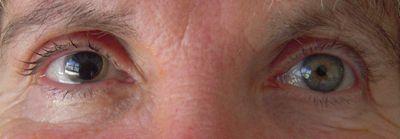 Crystalline eye implants